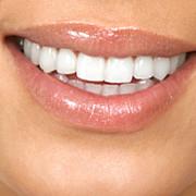 branza te ajuta sa reduci cariile dentare