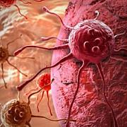 bolnavii de cancer vor avea acces gratuit la analize de ultima generatie