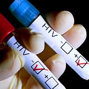 urmarile cazului tanarului din segarcea bolnav de sida doua foste iubite ale acestuia sunt infectate