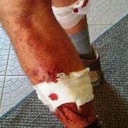 turist maghiar atacat de caini in muntii bucegi