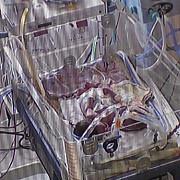 siamezele nascute in decembrie la constanta au murit