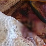 ancheta la spitalul de arsi dupa aparitia unor imagini cu un pacient care avea viermi in rani