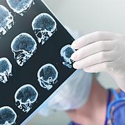 medic semnele unui avc sunt fata asimetrica mana picior care se misca greu pacientul nu vorbeste sau nu intelege ce i se spune
