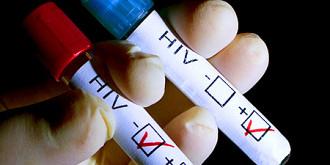 panica la segarcea un barbat infectat cu hiv a intretinut relatii sexuale cu mai multe tinere
