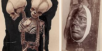 cel mai vechi muzeu medical din lume