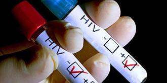 istoria genetica a hiv sida a aparut pentru prima data in congo in 20 cum s-a ajuns la 75 de milioane de infectii